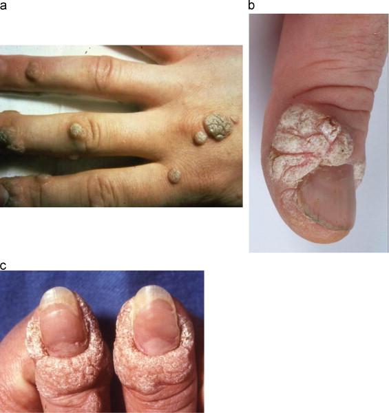 hpv foot rash