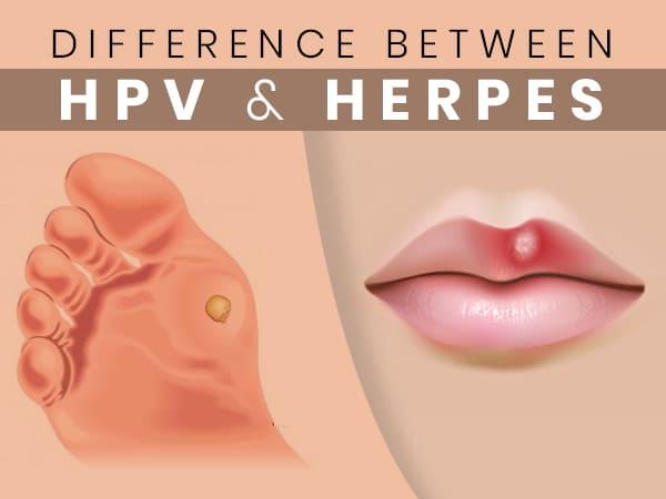 hpv herpes simplex 1)