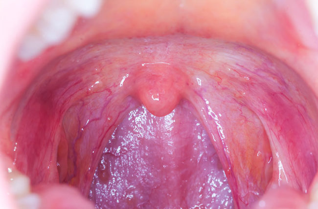 hpv lesion in throat)