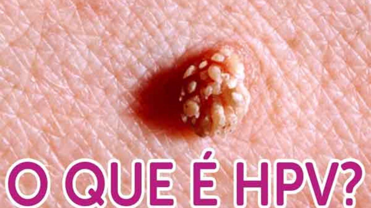 Papilloma virus dna or rna,, Hpv de lingua