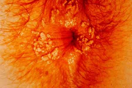 cum să elimini helmintii din plămâni