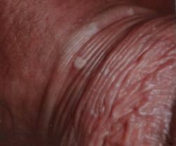 hpv uomo esame adulții sunt numiți o pastilă de viermi