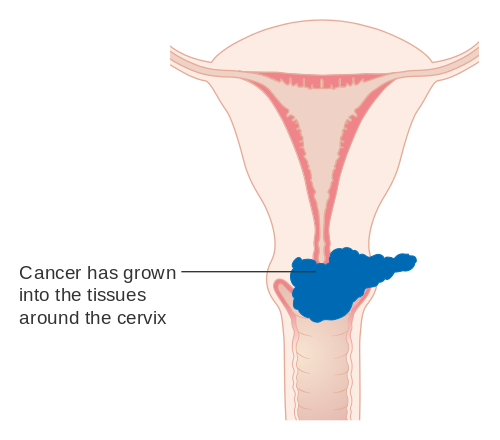 hpv virus and ovarian cancer)