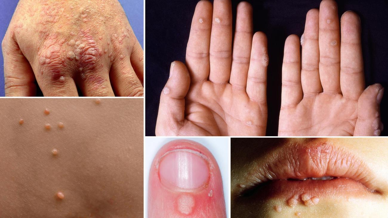 hpv virus warzen cancer endocrine pancreatic