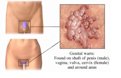 hpv virus warzen papilom zona inghinala
