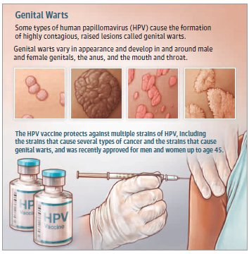 hpv warts how common)