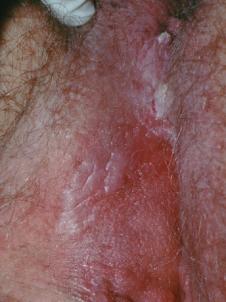 hpv warts what to do