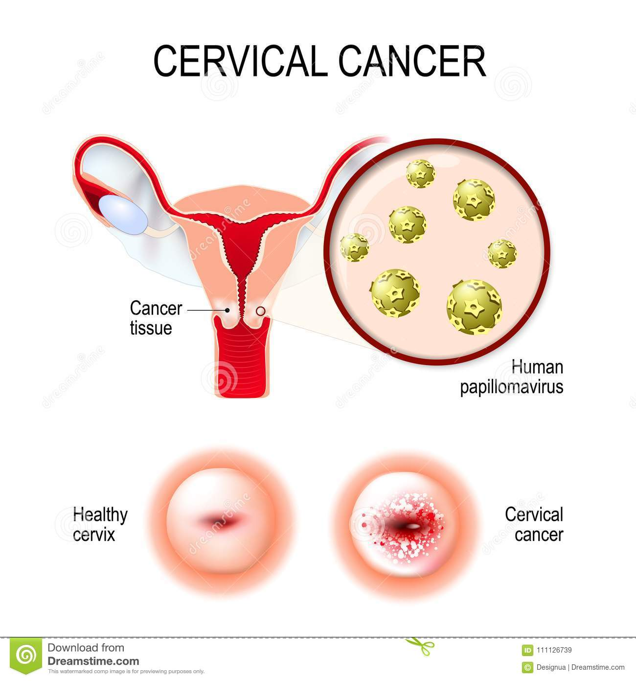 survival rate of hpv throat cancer