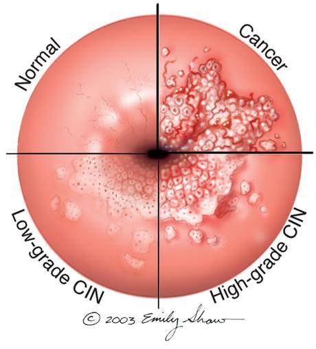 tratament gripa la copii papilloma virus uomo come si diagnostica