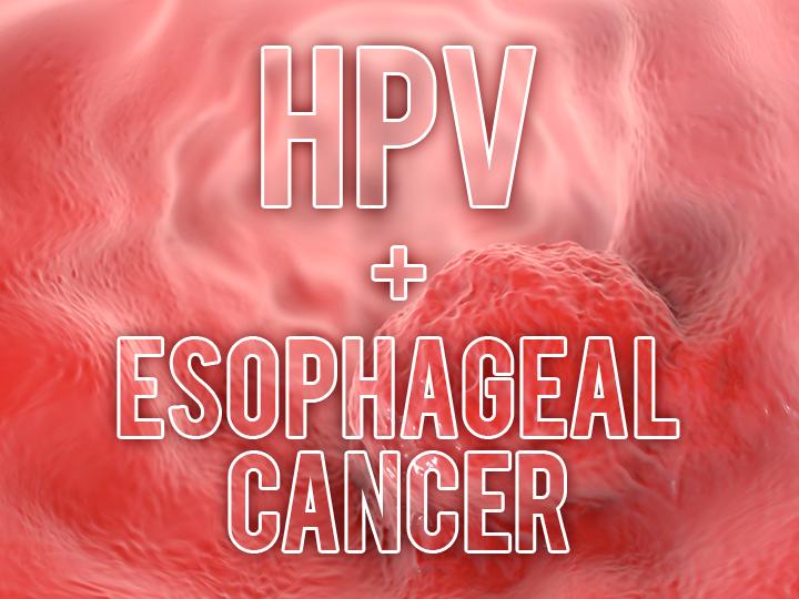 human papilloma virus in esophagus