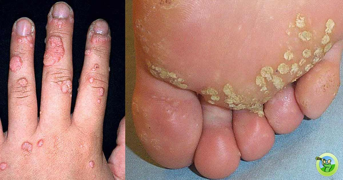 Hpv warts feet, Hpv warts feet Pin on sanatate