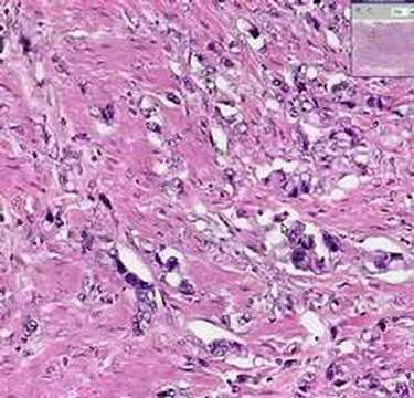 infecție cu difiltobotriază)