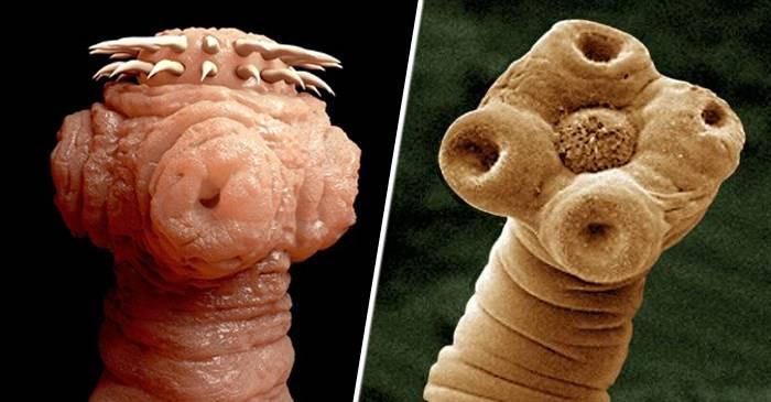 infestarea cu viermi de către paraziți