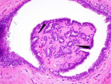 intraductal papilloma pathophysiology medscape fotografii giardia verme