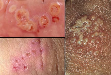 Hpv herpes syphilis.
