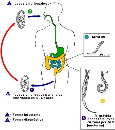 la enterobiasis sintomas)