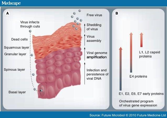 laryngeal papillomatosis emedicine)