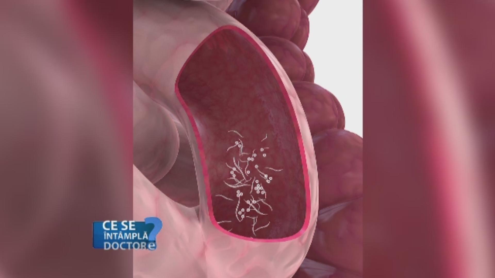 de la castri pentru prevenire papilloma vescicale recidiva