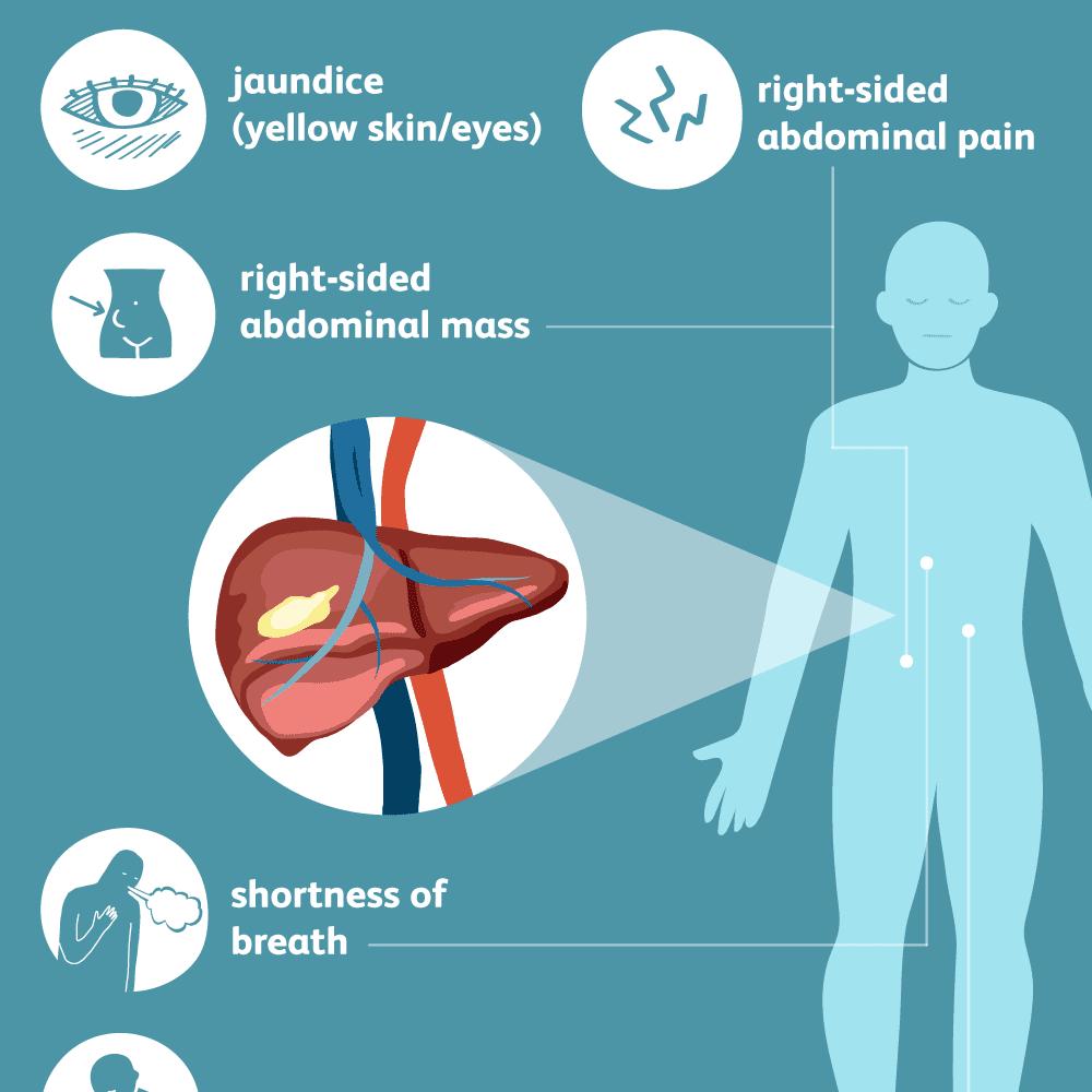 Ce este cancerul de ficat (hepatic) și cum se poate trata?
