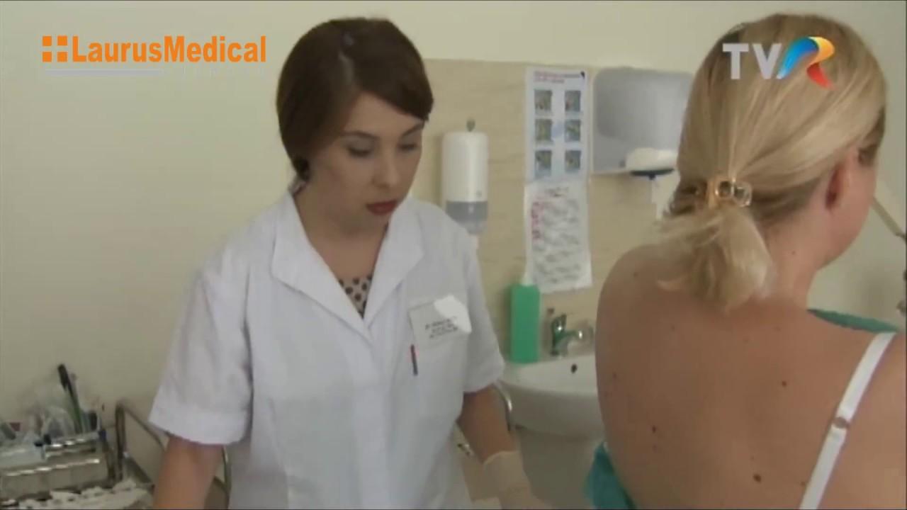 în care clinica se pot îndepărta papiloamele)