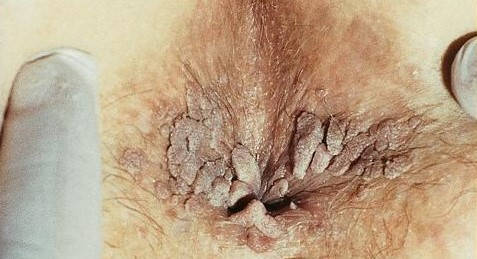 Neg in zona vaginala