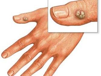 este posibilă pansarea condiloamelor virus papiloma gardasil