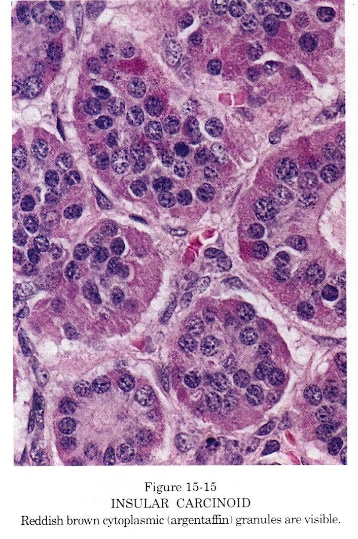 neuroendocrine cancer pathology outlines