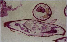 oxiuros apendicitis