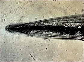 oxiuros worm)