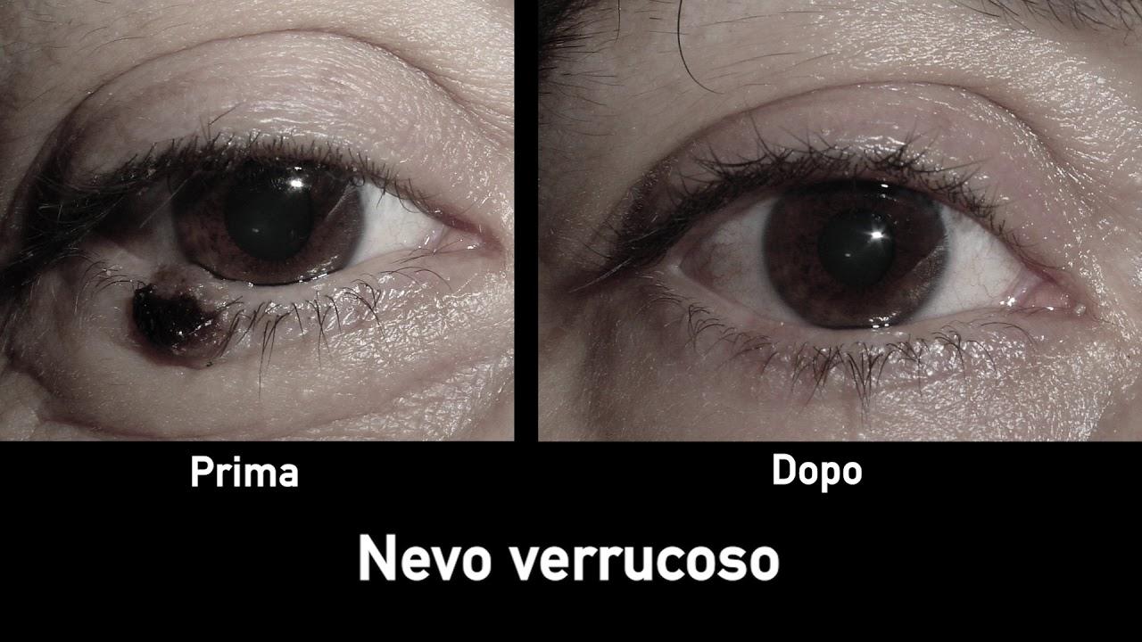 papilloma dell occhio)