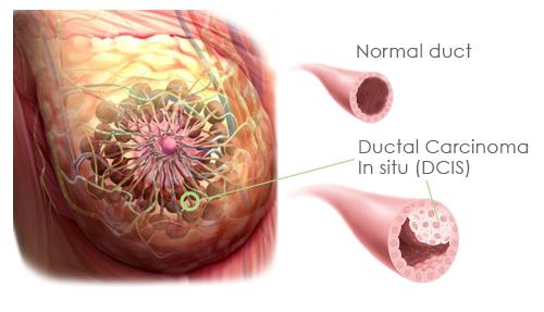 Papilloma intraduttale intervento - Cancerul bacterian al tomatelor