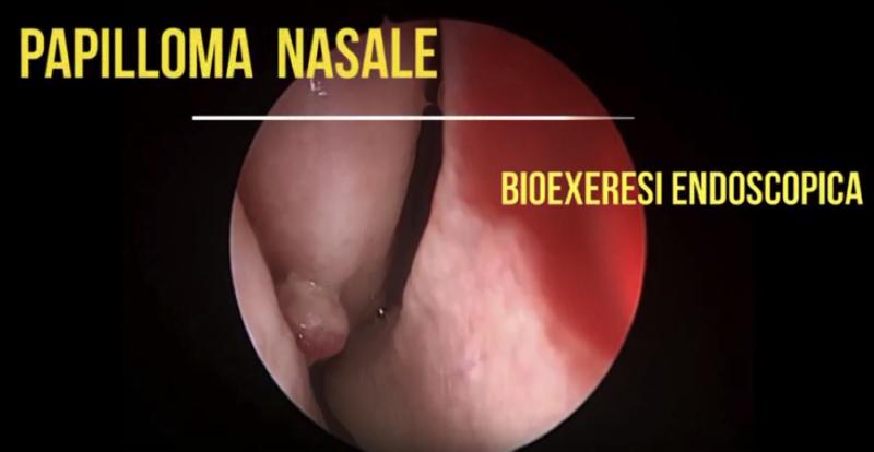 papilloma nasale