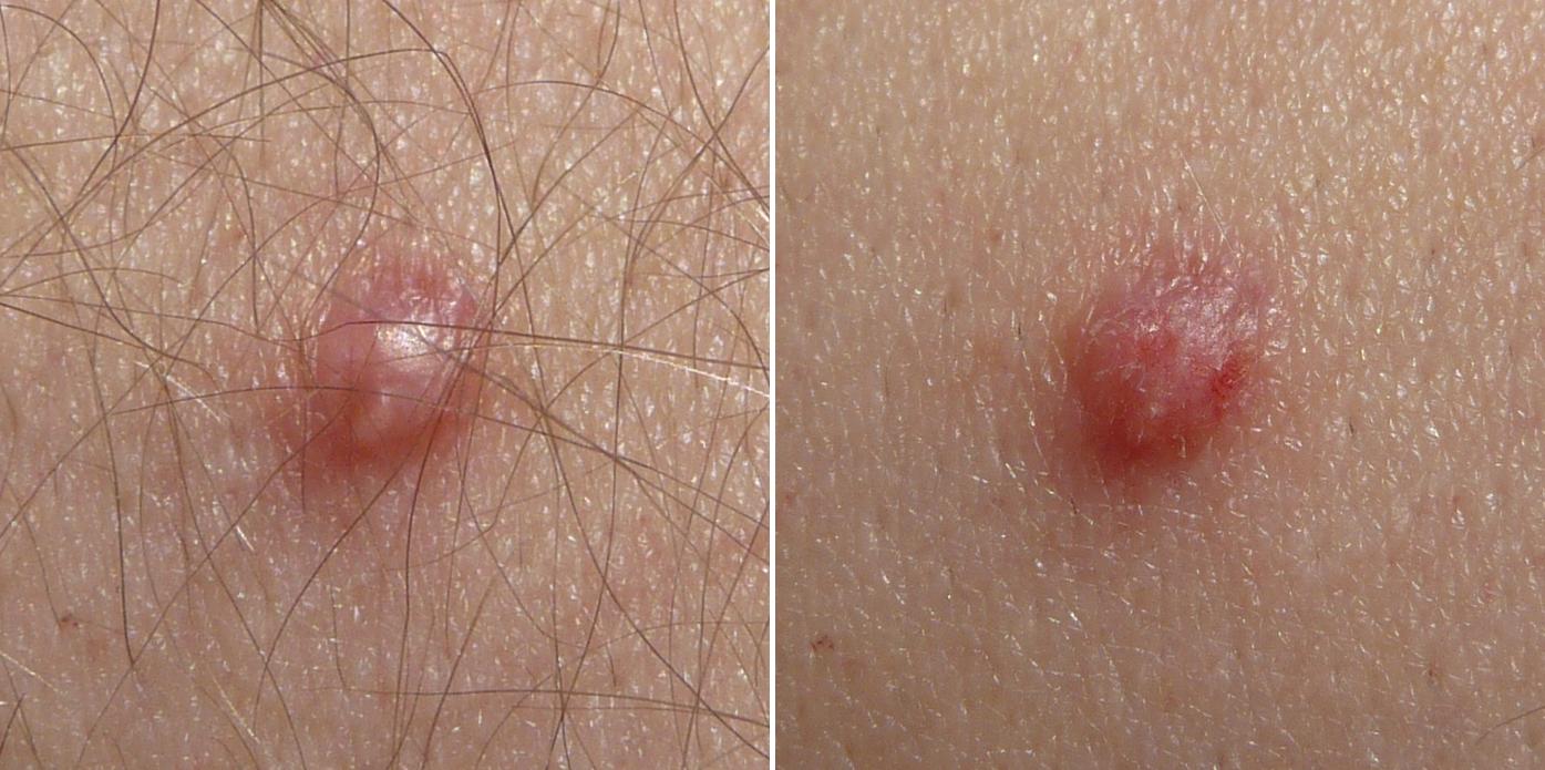 papilloma skin virus)