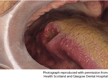 papilloma tongue nhs