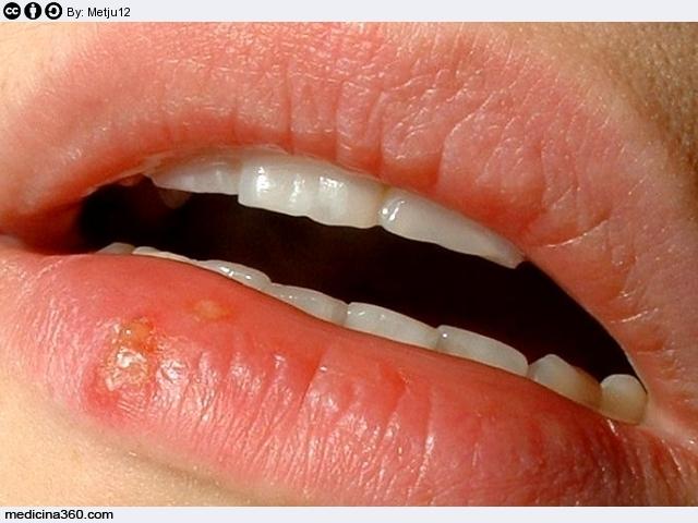 papilloma virus in gola come si prende