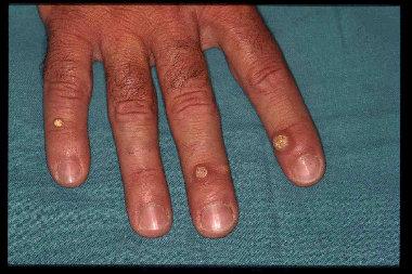 Contagio papilloma virus umano. Papilom și prostatită, Papilloma virus trasmissione mani