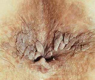 papillomavirus condylomata acuminata)