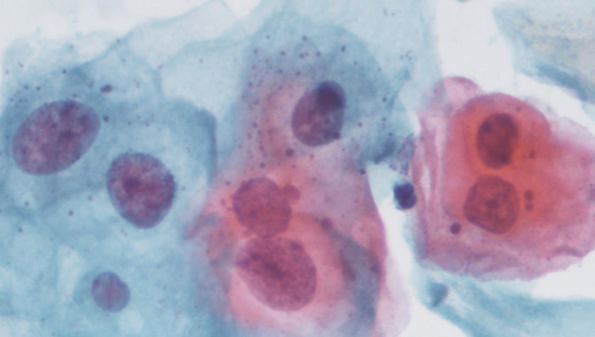 papillomavirus homme langue