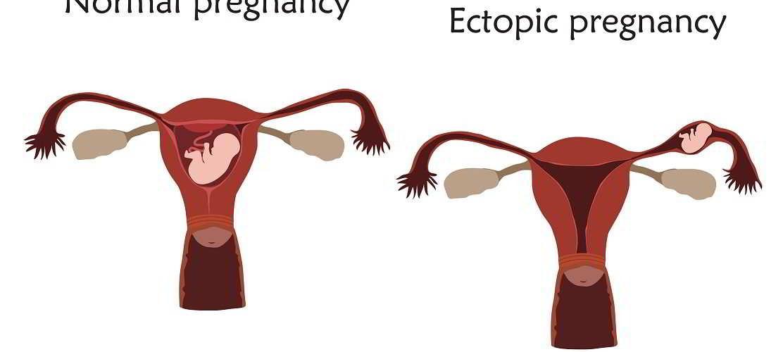 papillomavirus quand on est enceinte)