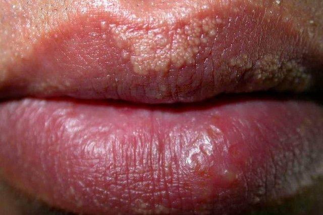 Virus papiloma en boca,