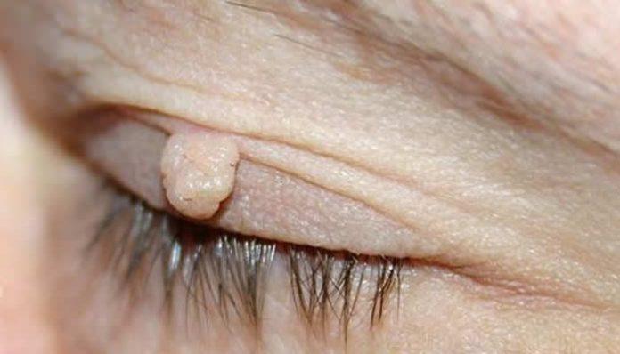 papiloma virus i bradavice