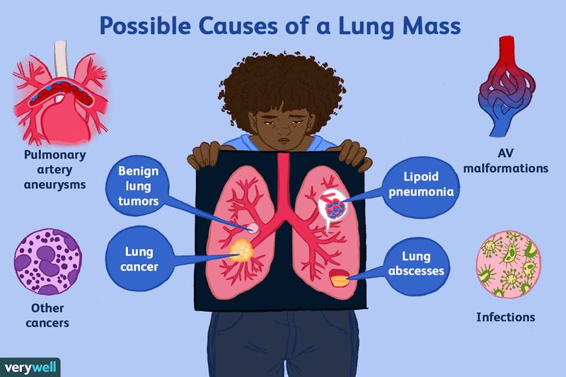 paraziți în simptomele și tratamentul bronhiilor