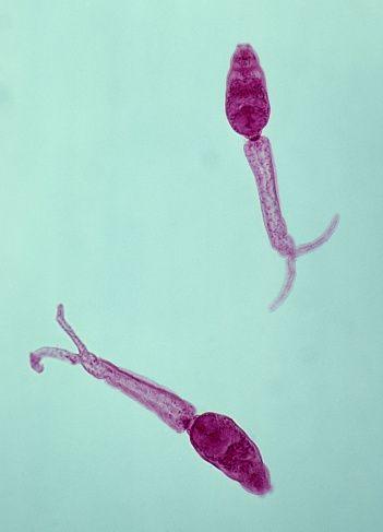 tratamentul cu vâscule pentru paraziți medicamente pentru tratarea papilomavirusului