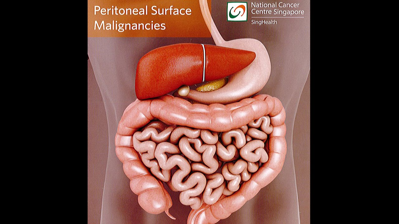 peritoneal cancer eating)