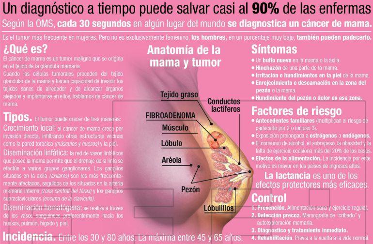 que es el cancer de mama