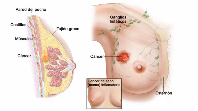 que es el cancer de mama)