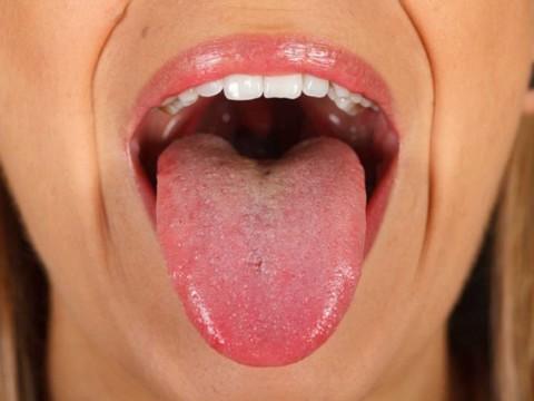 virus de papiloma en la boca)