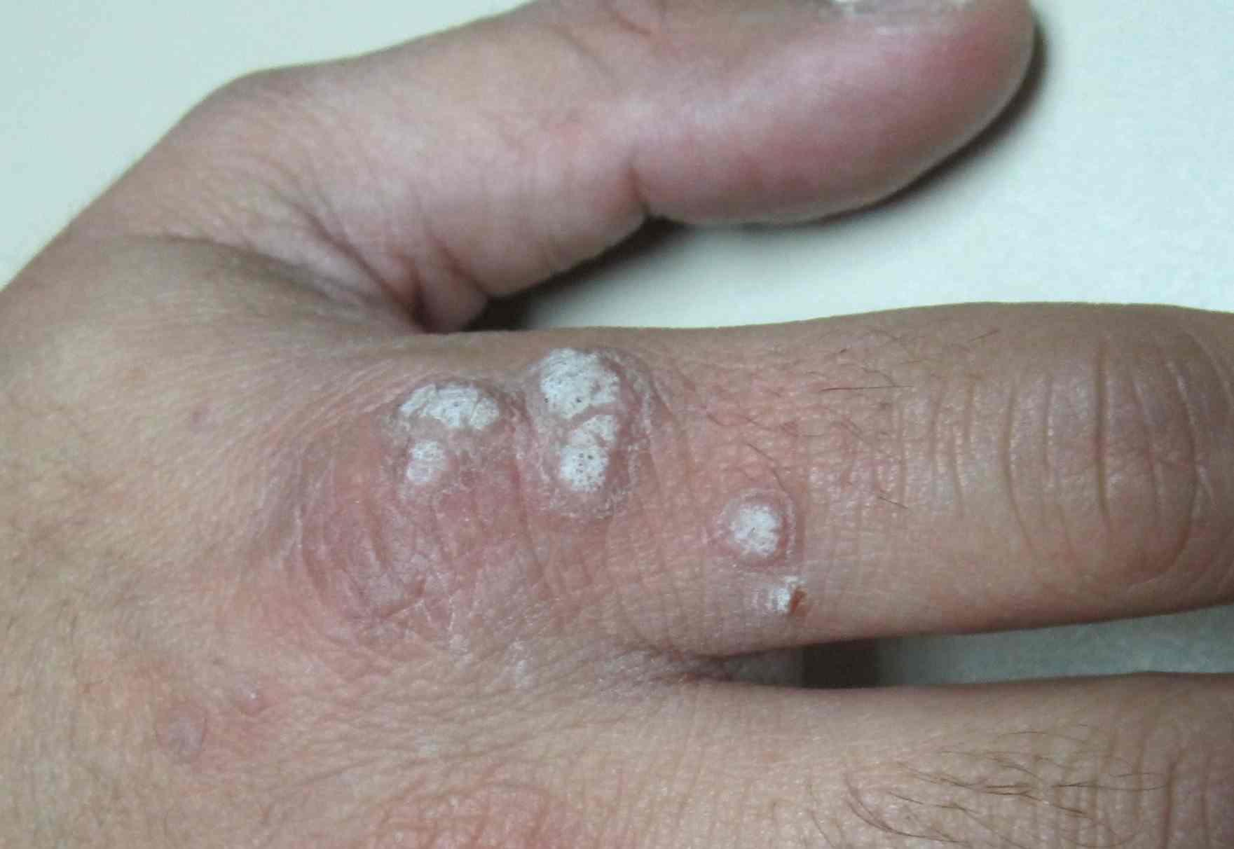 Hpv en mujeres sintomas verrugas - triplus.ro