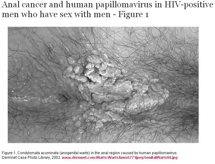 rectal papilloma virus)