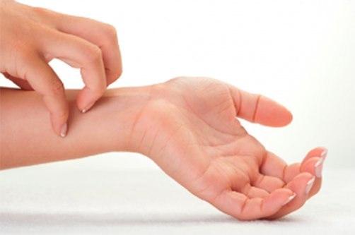 roșeață între degete și mâncărime